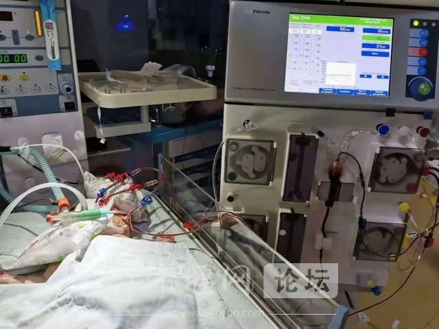 十堰首例新生儿连续肾脏替代治疗(CRRT)在市人民医院取得成功-1.jpg